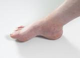 ankle sprain poster