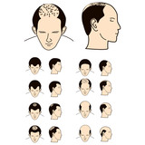 Fototapety hair loss