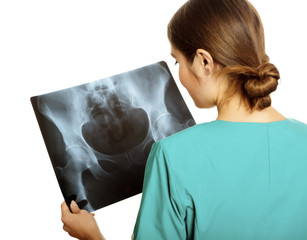 Female doctor examining an x-ray image. Focus is on the x-ray