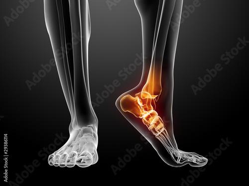 schmerzender menschlicher Fuß