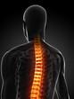 Rückenschmerz Illustration