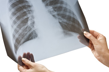 X-ray in hands