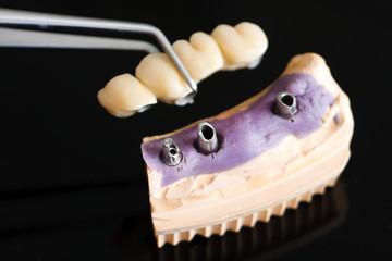 Dental implant head and bridge