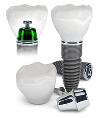 Dental Implant construction