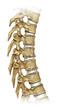 Artrosis de columna dorzal