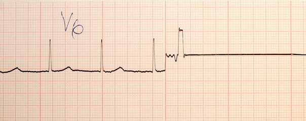 Electrocardiogram ECG,EKG