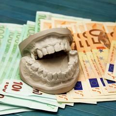 Zahnersatzkosten