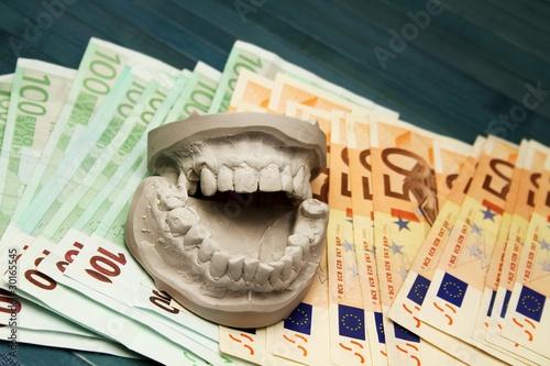 Zahnfinanzierung