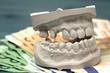 Versorgung mit neuen Zähnen