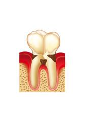 Odontología periodontitis