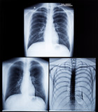 X-Ray Image Of Human Chest poster
