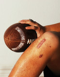 ACL Football injury. poster