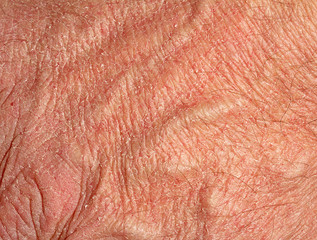 Dry skin on hand