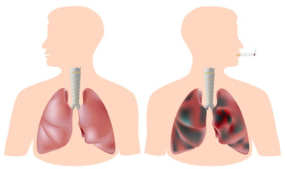 Smoker's lung (with tumor) vs healthy lung, eps8