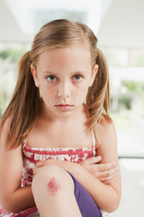 Crying girl with scraped knee