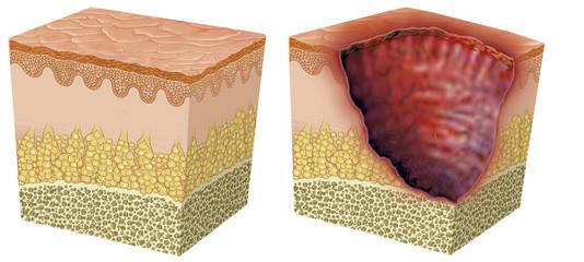 Ulceración 2