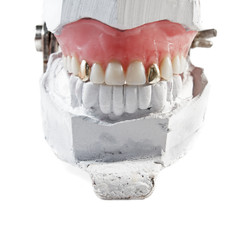 Restore teeth on bridgework with two gold teeth
