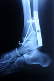 radiograph of human fracture ankle poster
