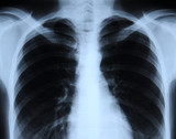radiograph of human chest poster