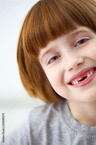Closeup portrait of a cute smiling girl missing front teeth from ...