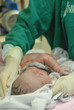 new born infant in the operation room