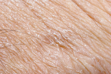 dry skin texture