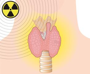 Radioaktive Strahlung Schilddrüse