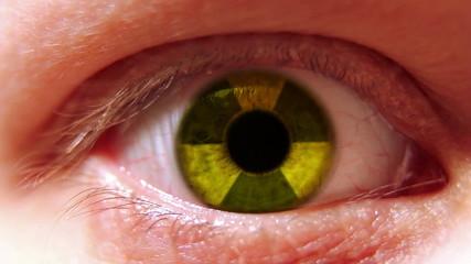 Radiation sign in eye