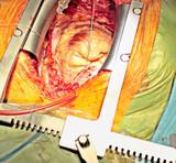 cardiac surgery poster