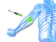 3d rendered illustration showing an elbow joint injection