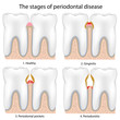 Periodontal Disease , eps8