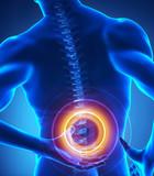 Backbone injury x-ray view poster