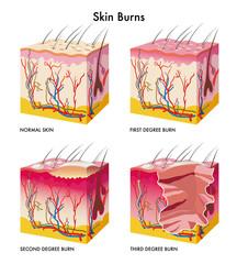 ustione della pelle