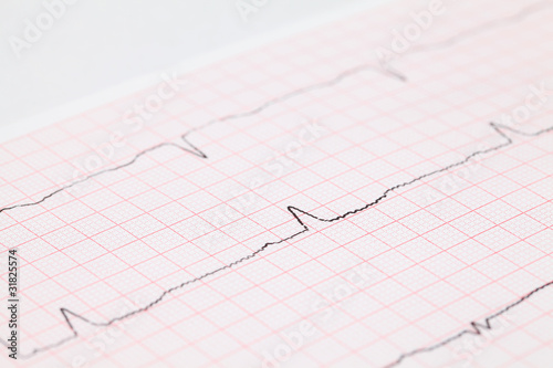 Close-up view on cardiogram