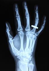 Radiography / Hand