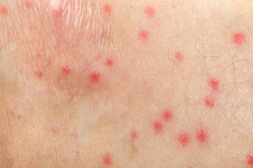 mosquito allergy on human skin