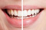 Zähne vor und nach dem Bleaching - 32156505