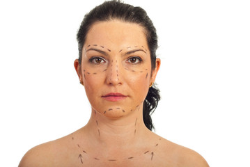Woman face prepared for plastic surgery