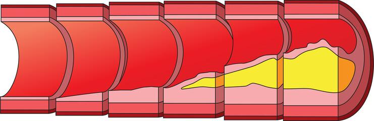 Accumulation of cholesterol in vascular walls.