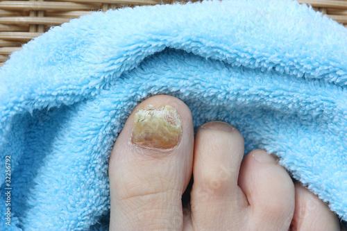 Nagelpilz, Fußpflege