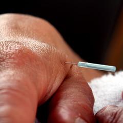 Nadel im Handrücken