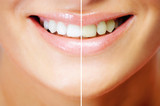Teeth whitening , before and after comparison poster