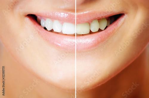 Fototapeten,zahn,zahn,lächeln,mund