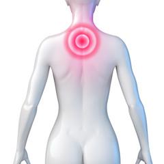 Weiblicher Oberkörper – Rückenschmerz
