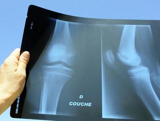 radiologie articulation genou