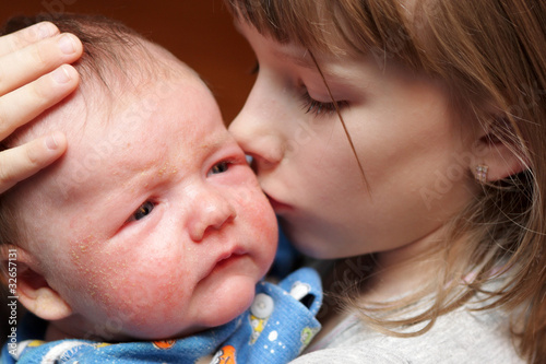 Sister kisses her brother