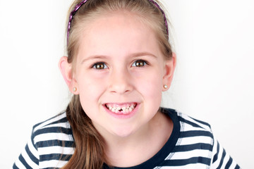 First missing tooth