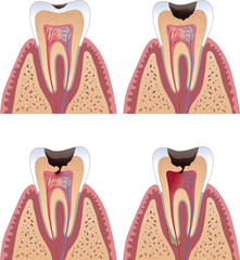 Caries stages