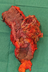 tumore intestinale