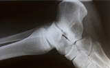 human foot ankle closeup xray poster